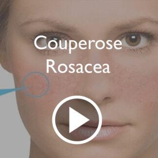 Couperose/Rosacea